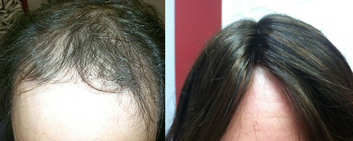 female alopecia hair loss replacement syracuse