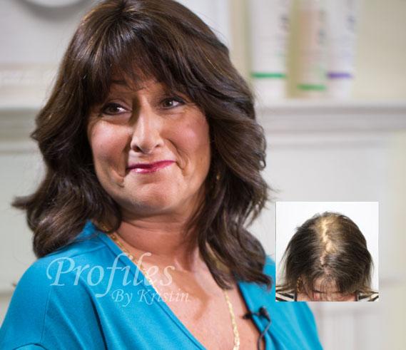 female hair los restoration additions syracuse new york