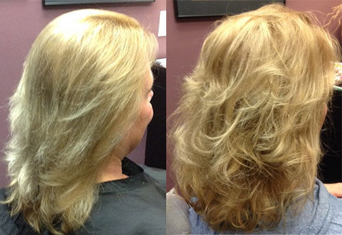 female hair loss restoration syracuse ny