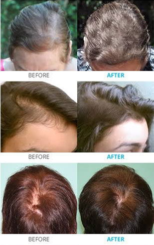 laser hair loss treatment therapy results syracuse ny