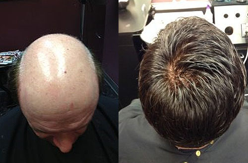 mens hair replacement central new york upstate