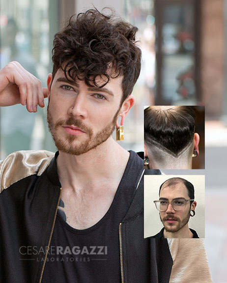 mens hair loss replacement Syracuse NY