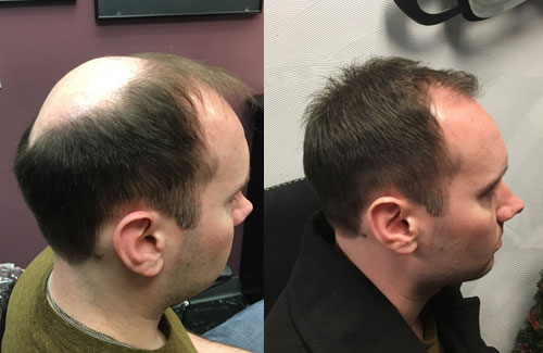 mens hair restoration syracuse ny