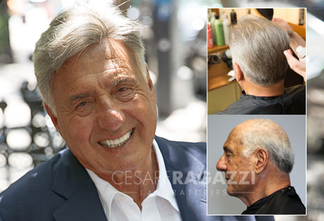 non-surgical hair replacement male syracuse new york