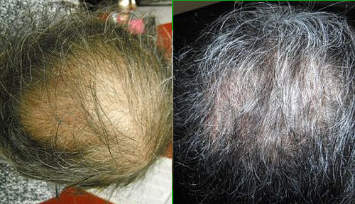 trichological scalp therapy